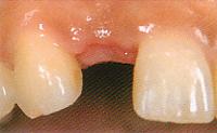 歯を1本だけ失った場合