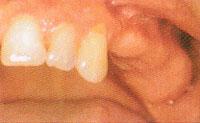 数本の歯を失った場合
