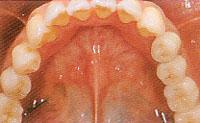 歯のない部分が広い場合