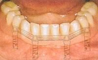 歯がまったくない場合