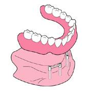 歯を失うこと